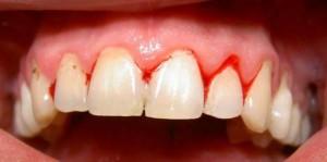 Bệnh hay chảy máu chân răng nên lưu ý và chữa trị kịp thời